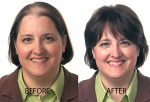Hair Restoration for Her