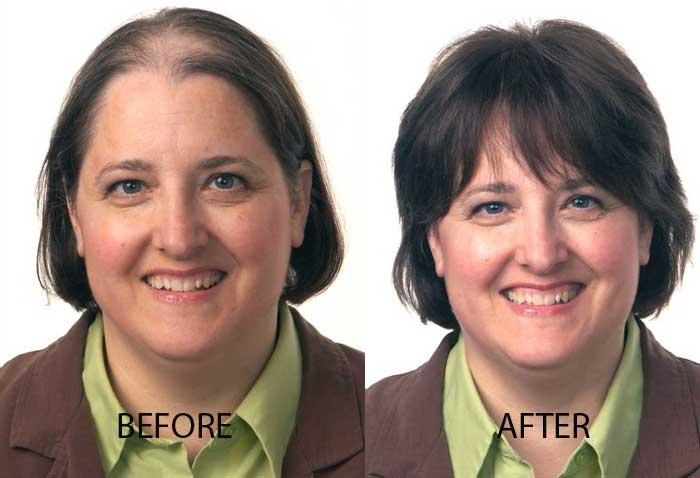 Hair Restoration for Her